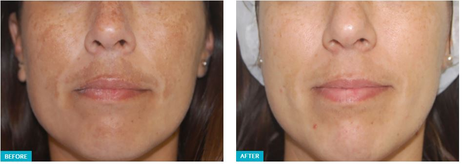 Clarity II Laser Before and After 1