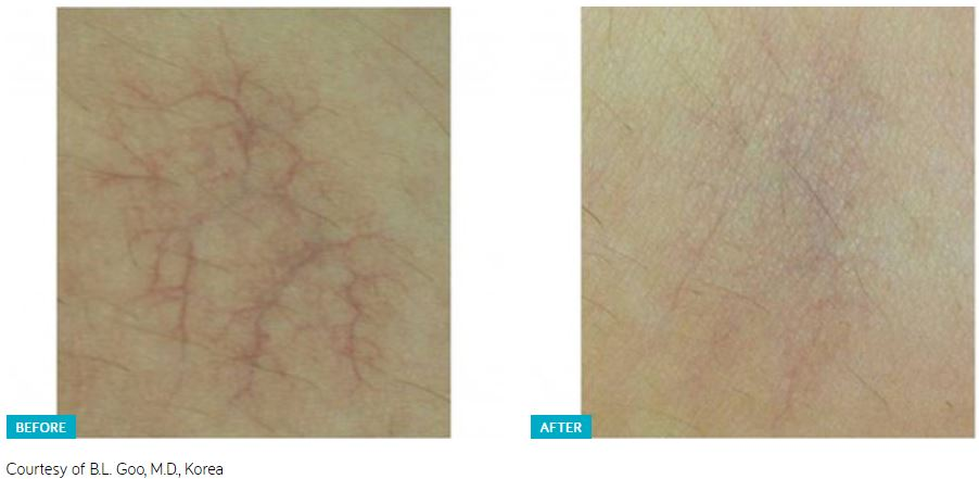 Clarity II Laser Before and After 3