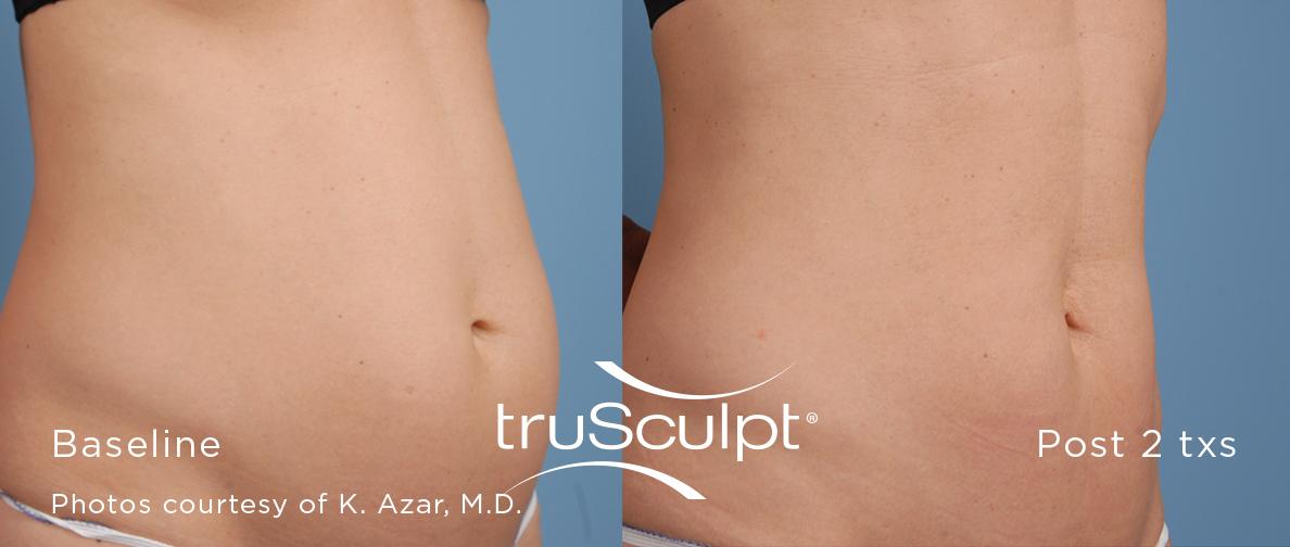 truSculpt_Body_1