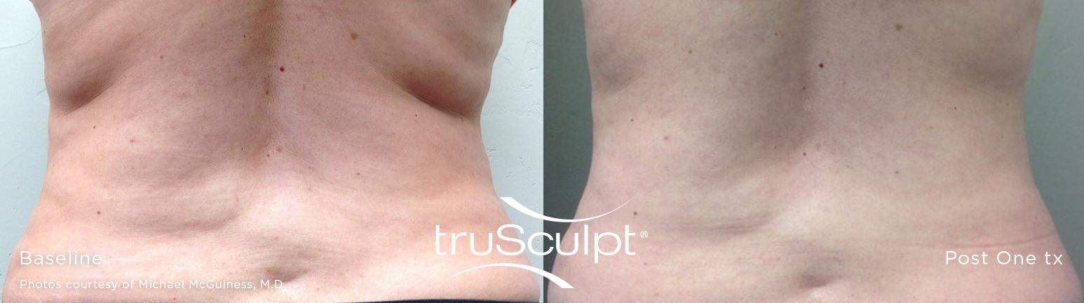 truSculpt_Body_10