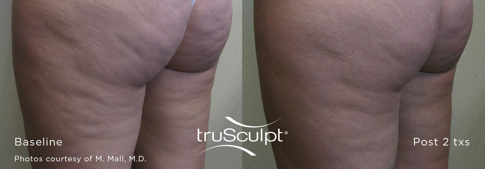 truSculpt_Cellulite_1
