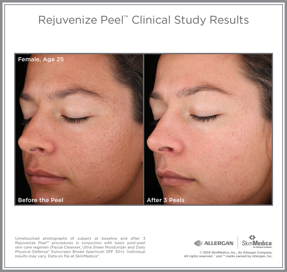 Cosmetic Services Lifetime Dermatology Dr Ann Hern