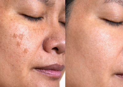 Spot Removal/Reduction